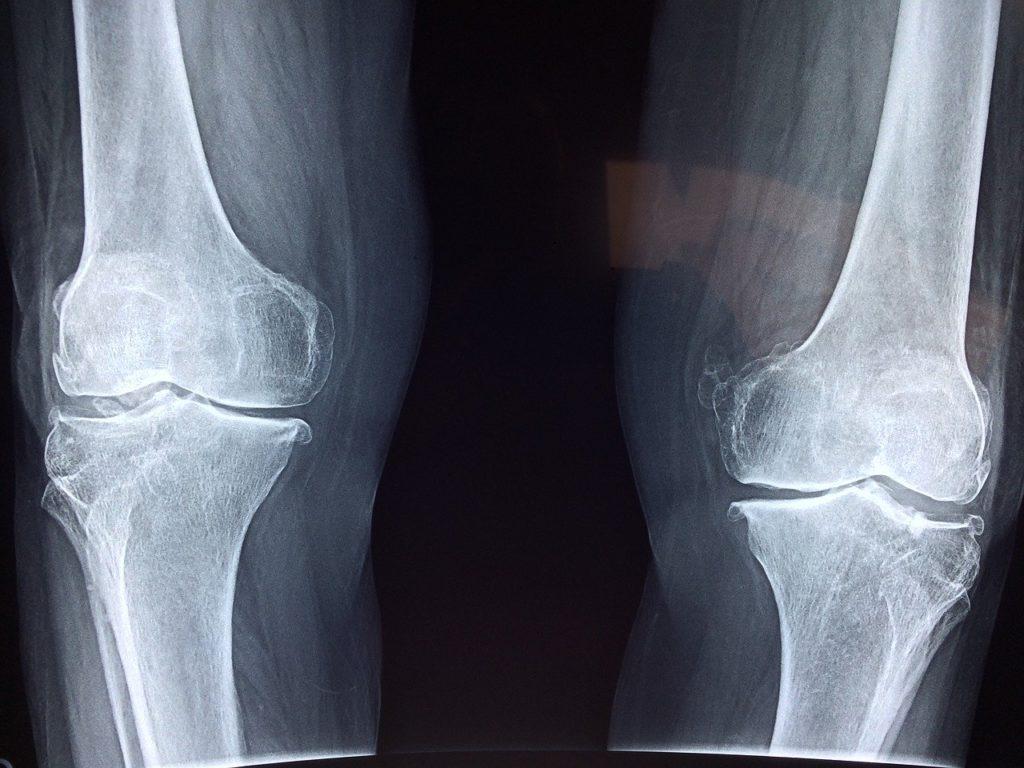 膝が痛いのでウォーキングを始める人
