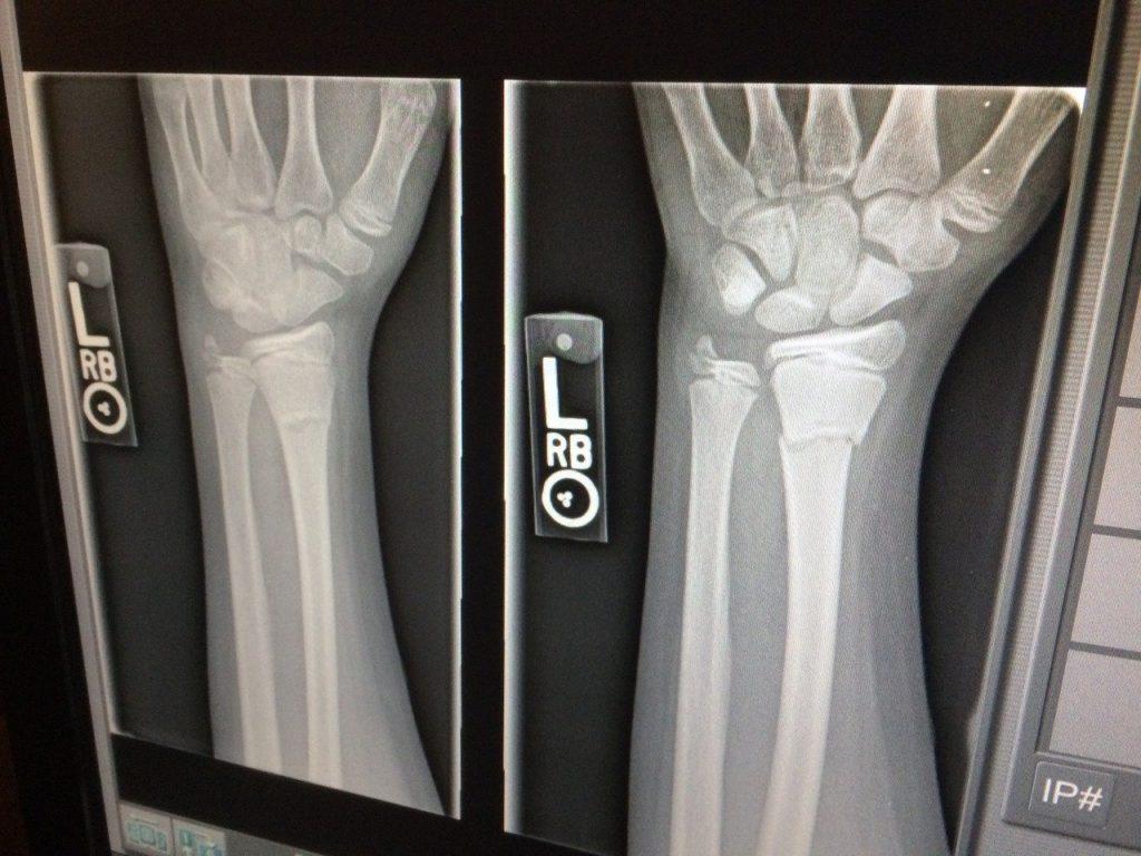 骨密度と骨折