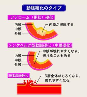 動脈硬化の種類