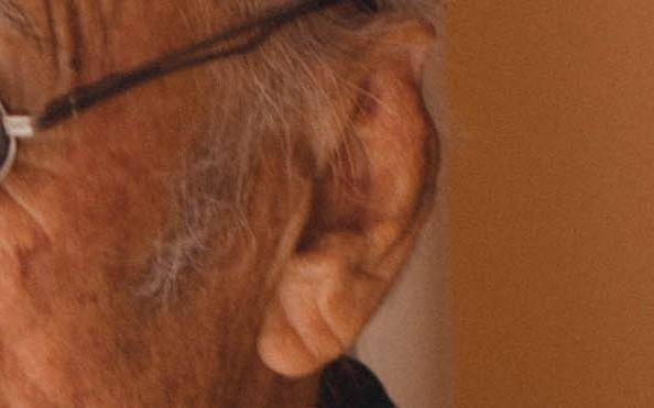動脈硬化 症状 耳たぶ
